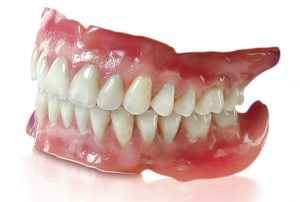 full dentures at Dr. Timothy Roney DDS & Associates
