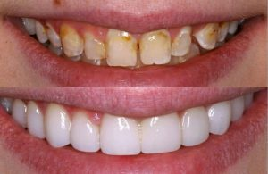 Porcelain Veneers before and after picture